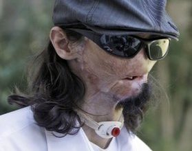 Disfigured construction worker gets face transplant